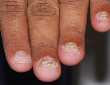 His Finger Nails Are Too Short!