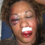 Another Nigerian Woman Gets Beaten By Her Husband