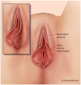 Methods of penis enlargement without surgery